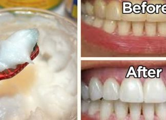 The MIRACLE Dental Bacteria Killer called Coconut Oil